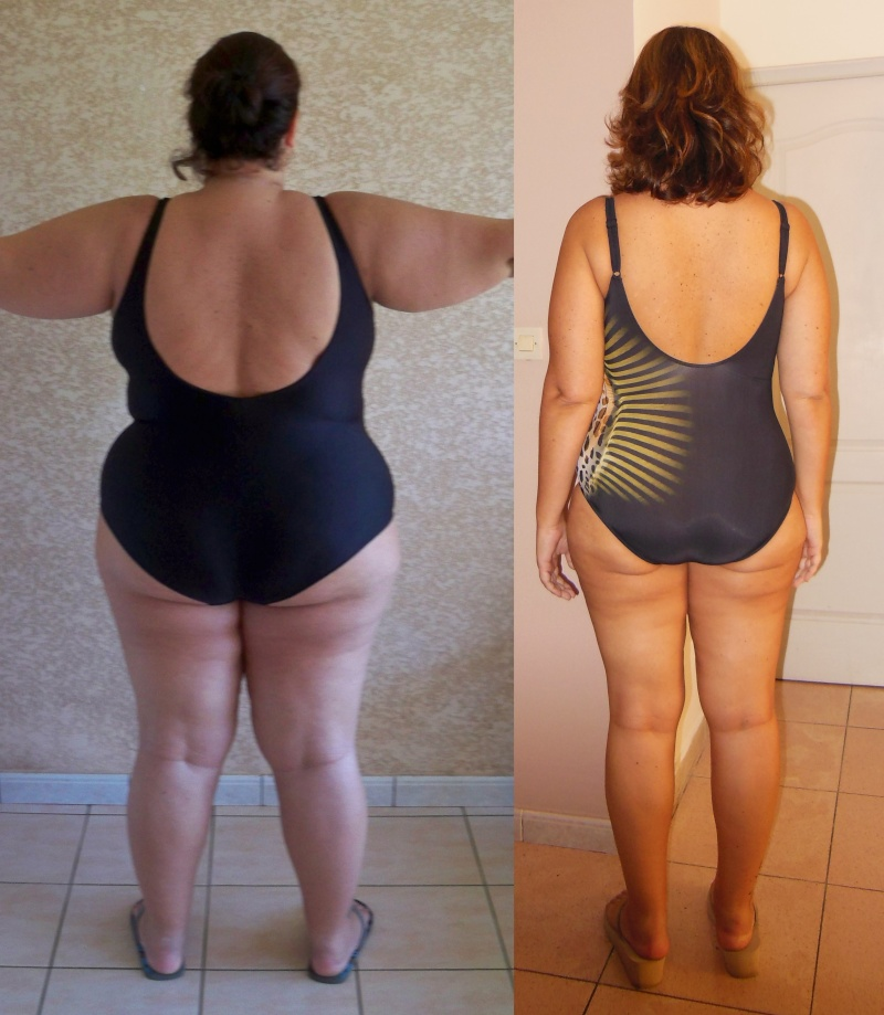 obesite tunisie