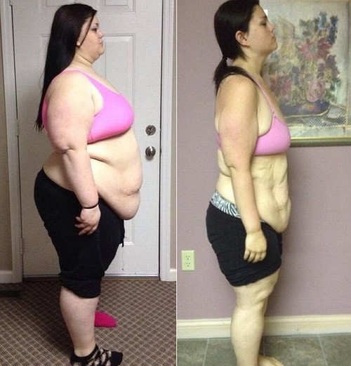 obesite morbide