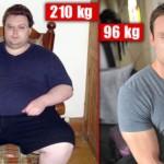 Obesite massive