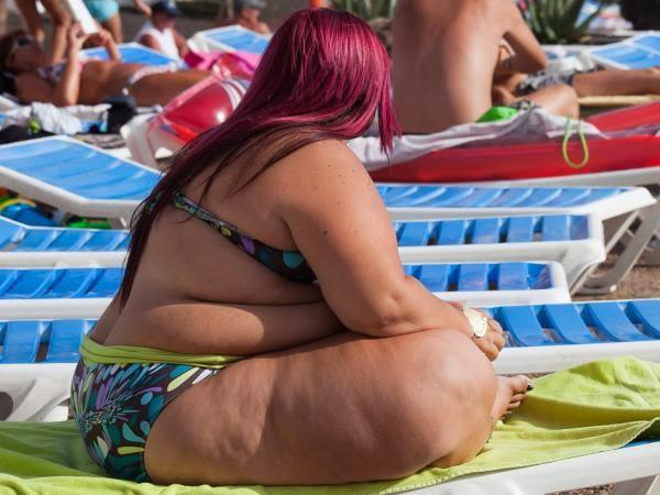Obesite et surpoids