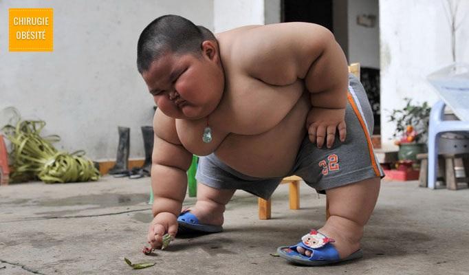 obesite morbide enfant