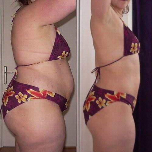 Quelle operation pour perdre du poids