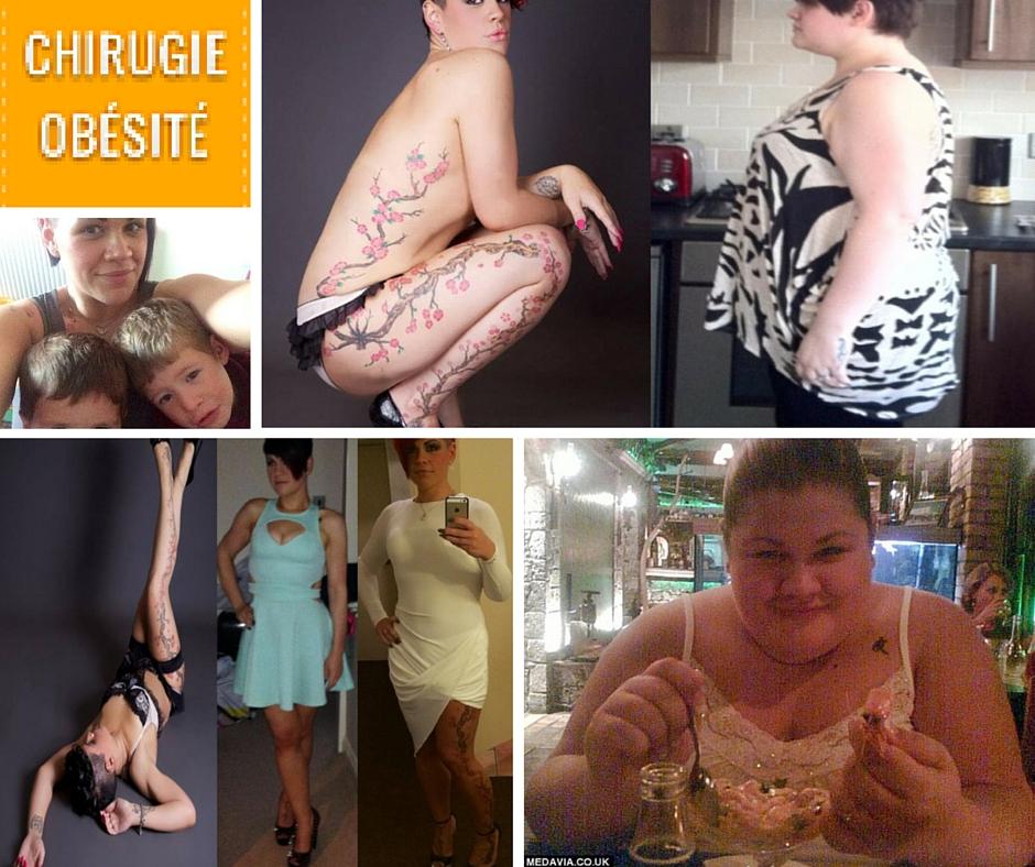 transformation radicale - Perdre 85kg avec anneau gastrique