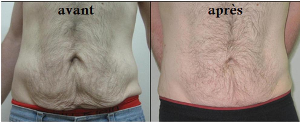 liposuccion apres perte de poids