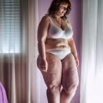 Deux femmes parmi trois femmes souffrent d'obésité en Tunisie.