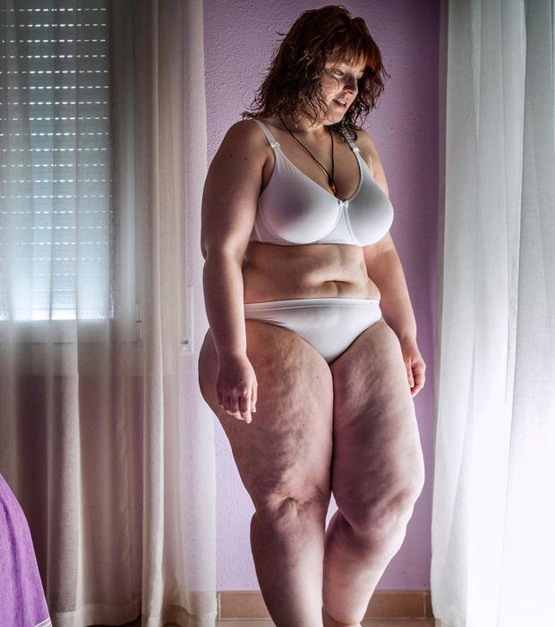 obesite en Tunisie