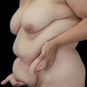 Liposuccion et obesite