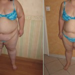 Benefices du bypass gastrique en tunisie
