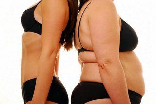 chirurgie esthetique obesite tunisie