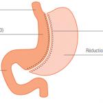 Après une sleeve gastrectomie : quelques recommandations utiles